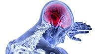 التهاب مزمن در میانسالی، عامل مشکلات حافظه در پیری است