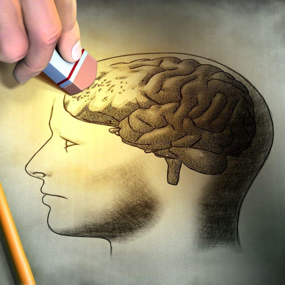 آشنایی با داروهای دشمن زوال مغز و آلزایمر