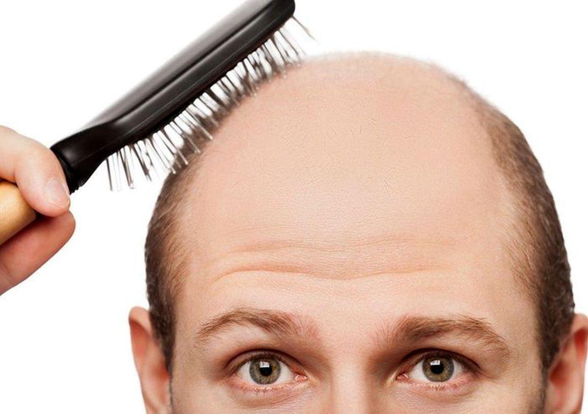 بهترین خوراکیها برای جلوگیری از ریزش مو