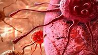هشدار: قندخون بالا ریسک سرطان لوزالمعده را افزایش میدهد