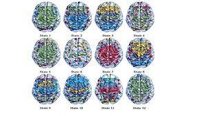 کشف 12 حالت مخفی در مغز